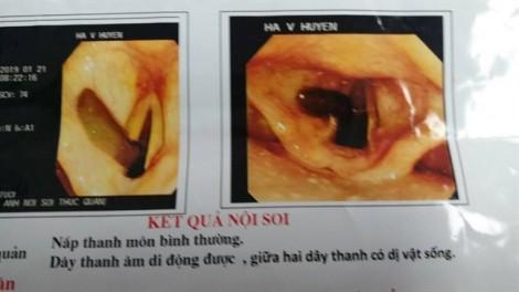 Ho ra máu, nam bệnh nhân phát hiện đỉa trâu dài 10cm sống trong họng