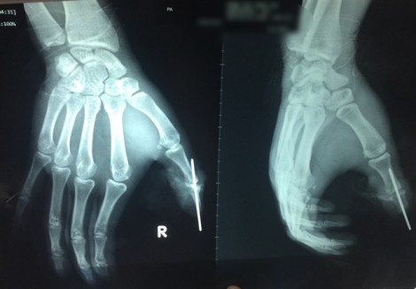 Dây điện ngoài đường cuốn khiến nạn nhân đứt lìa ngón tay cái