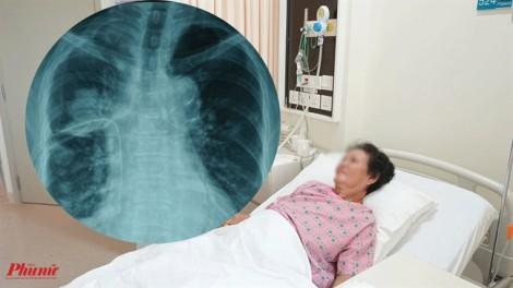 Phát hiện ung thư phổi sau 2 tuần ho không hết