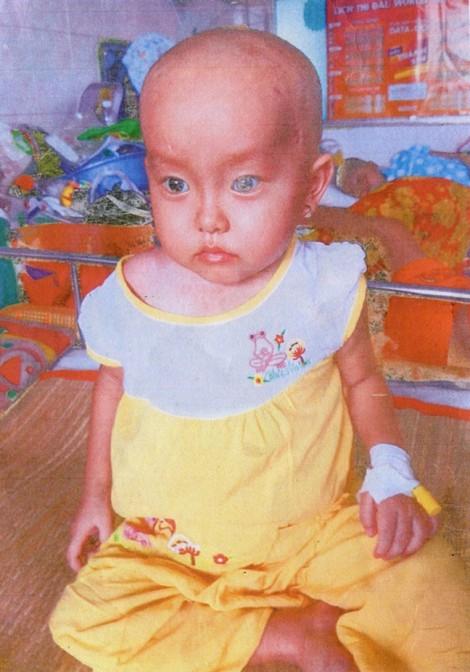 Xin giúp hai trẻ nghèo chữa bệnh