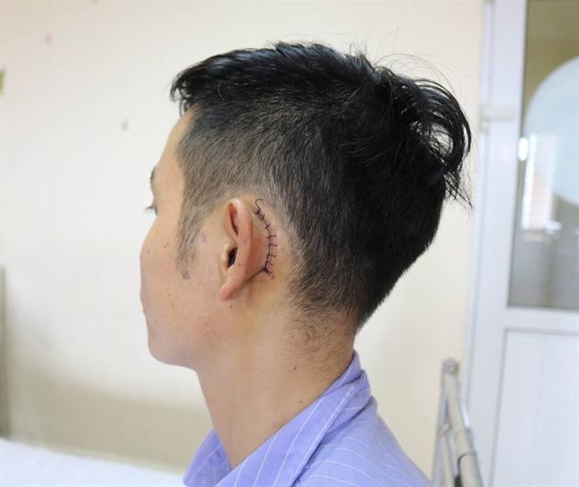 Dien thoai phat no gay thung mang nhi
