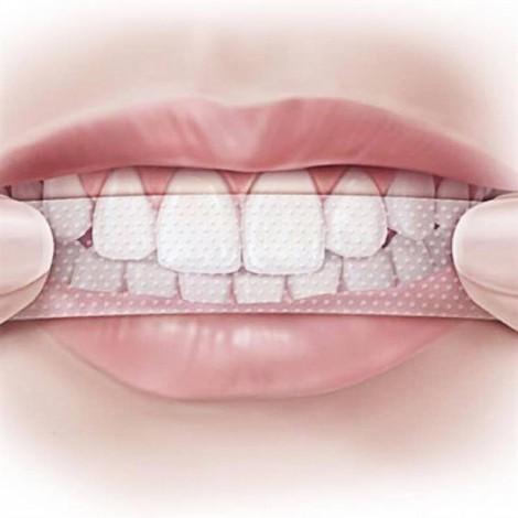Miếng dán trắng răng hay phá hủy răng siêu tốc?