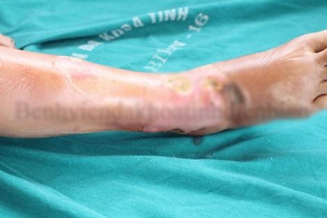 Thầy lang tiêm vào chỗ ngứa, bệnh nhân hoại tử chân