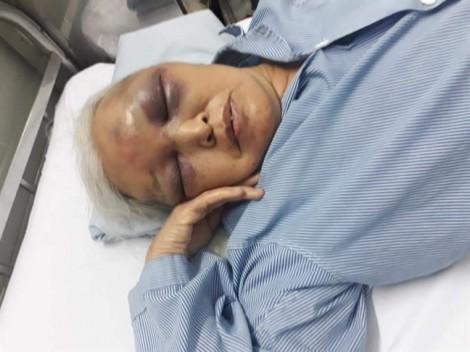Con rể đánh mẹ vợ cũ bầm mặt do bị từ chối thăm con