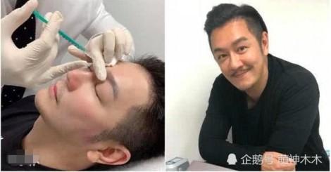 Trần Hạo Dân bị khán giả 'la ó' vì gương mặt khác lạ sau khi can thiệp thẩm mỹ