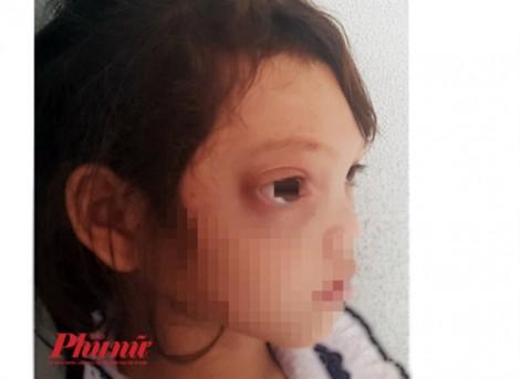 Dân làng ở Quảng Nam tế trâu trị bệnh cho cô bé bị chảy máu mũi liên tục