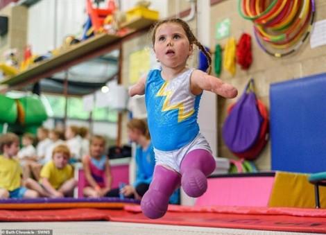 Bé gái mất tứ chi do viêm màng não và niềm đam mê thể dục dụng cụ