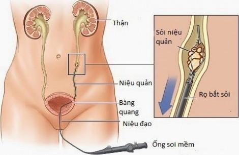 Nang niệu quản bẩm sinh: Phát hiện sớm, tránh biến chứng