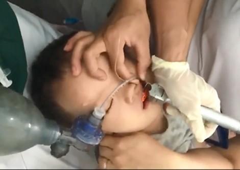 Bị hóc thạch rau câu, bé trai 2 tuổi ngưng tim ngưng thở