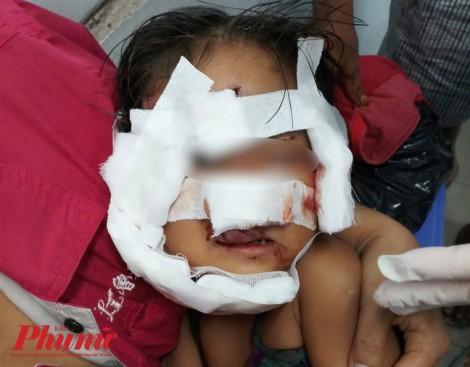 Bé gái 2 tuổi bị chó chạy rông ngoài đường xông vào cào, cắn nát mặt