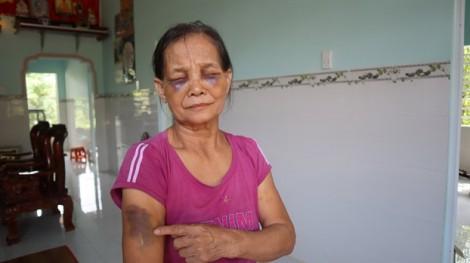 'Con dâu đánh mẹ chồng húp mắt, bầm mình' chỉ bị phạt 2 triệu đồng