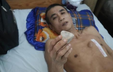 Clip: Kỳ lạ '7 viên ngọc rồng' hình kim tự tháp trong người 1 bệnh nhân