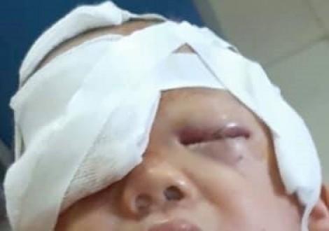 Bé 20 tháng tuổi bị chó nhà cắn nát mặt, gãy xương mũi