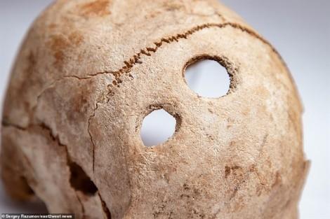 Phát hiện người xưa trị đau đầu bằng phương pháp đục lỗ ở hộp sọ