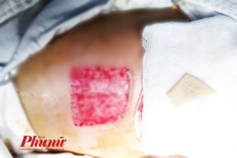 Vì sao TP.HCM đề xuất bác sĩ người nước ngoài phải biết tiếng Việt khi khám bệnh cho người Việt?