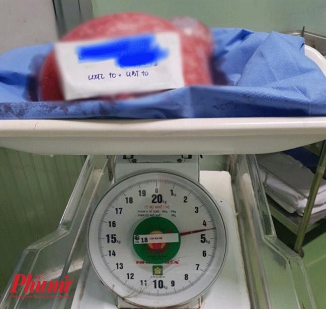 Tuong map bung sau man kinh nao ngo mang khoi u 4,5kg