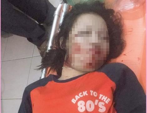 Dây điện sà xuống quốc lộ làm chết thiếu nữ 17 tuổi