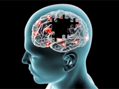 Giấc ngủ trưa quá dài có thể là dấu hiệu bệnh Alzheimer