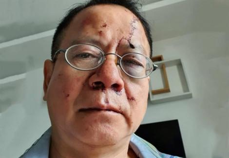 Việt kiều Đức bị nhóm thanh niên hành hung trong quán karaoke ở Sài Gòn