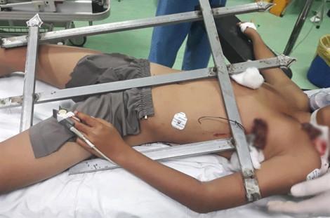 Bé trai 13 tuổi bị thanh sắt hàng rào đâm xuyên ngực khi chơi trốn tìm
