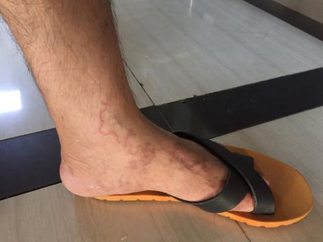 Sởn gai ốc hình ảnh ấu trùng sán 'đào hầm' khắp bàn chân