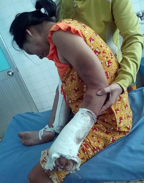 Khởi tố người đánh dã man vợ mang thai 7 tháng