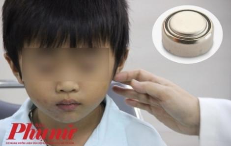 Bé trai thủng màng nhĩ vì viên pin trong đồ chơi hình quả trứng