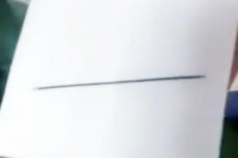 Phát hiện cây kim dài 7cm trong tim bé gái