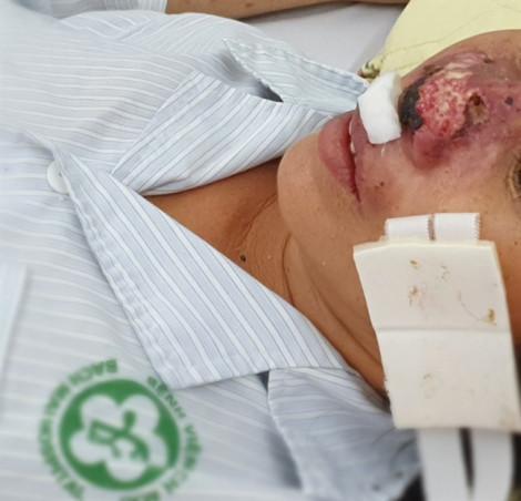 Bệnh nhân bị ăn mòn cánh mũi bởi căn bệnh truyền nhiễm nguy hiểm tưởng đã 'lãng quên'