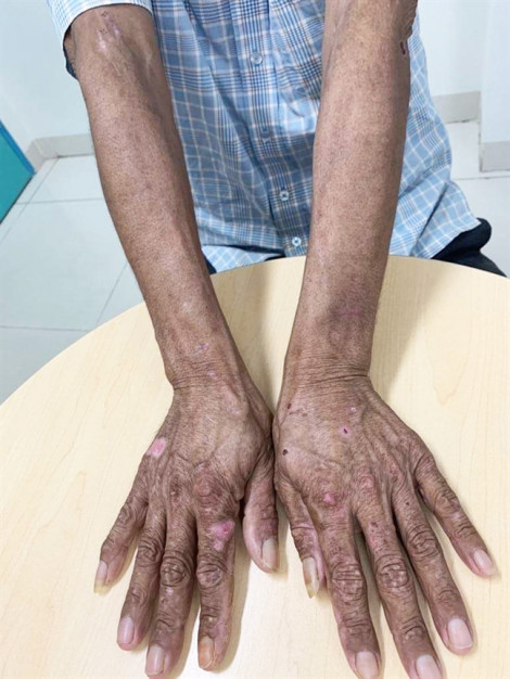 Đi khám da, lòi ra nhiễm độc sắt