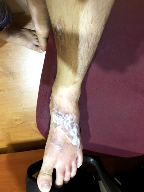 Phỏng độ 2 vì nước thông cống đổ xuống chân