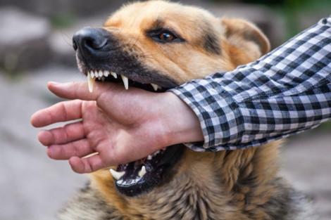 Bé 5 tuổi tử vong sau 1 tháng bị chó dại cắn