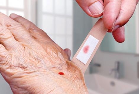 Uống trà chứa băng cá nhân dính máu có nhiễm HIV?