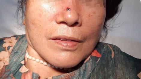 Tưởng nốt ruồi vô hại trên mũi, bất ngờ phát hiện ung thư
