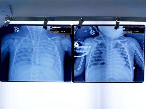 Bé gái gần 3 tuổi được cứu sống nhờ phương pháp thở không cần tim, phổi