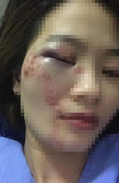 Bị nhắc nhở, nhóm 4 thanh niên đánh nữ nhân viên xe buýt bầm mắt