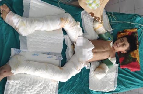 Giúp mẹ quét dọn dưới đường điện cao thế, nam sinh lớp Bảy bị điện giật hoại tử hai tay