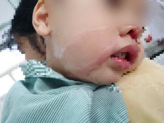 Lấy nhầm axít tẩy nốt ruồi nhỏ vào mũi con trai 2 tuổi gây bỏng nặng