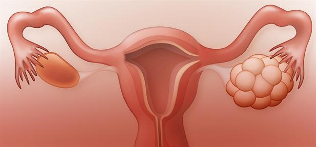 Buong trung da nang va co hoi mang thai