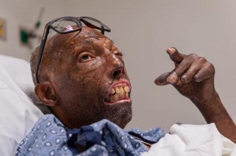 Lần đầu tiên các bác sĩ ghép thành công toàn bộ khuôn mặt cho một người Mỹ gốc Phi