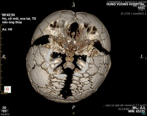 Một phần vùng đầu không có xương, em bé mắc bệnh hiếm cả thế giới 1 triệu ca mới có 1