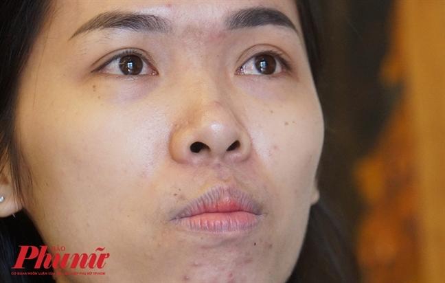 'Neu khong co chi, con trai em se khong duoc song tiep'