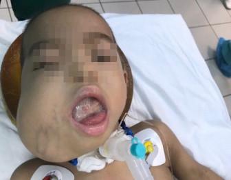 Cuộc hội chẩn xuyên biên giới giữa Pháp, Mỹ và Việt Nam để cứu bé gái thoát khỏi u quái chèn lưỡi hiếm gặp
