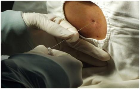 Bác sĩ chỉ cách tránh liên cầu khuẩn lợn sau khi cụ ông 74 tuổi bán thịt heo nhập viện