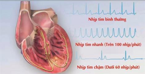 Cấy chíp theo dõi nhịp tim siêu nhỏ, cơ hội cho bệnh nhân tai biến