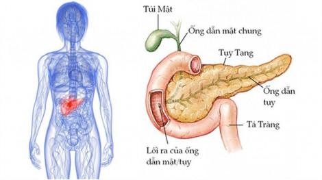Tìm thấy loại thuốc quen thuộc có thể thu nhỏ 'khối u chết người' cho bệnh nhân ung thư tuyến tụy