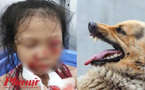 Chơi với chó con, bé gái 7 tuổi bị chó mẹ cắn nát mặt