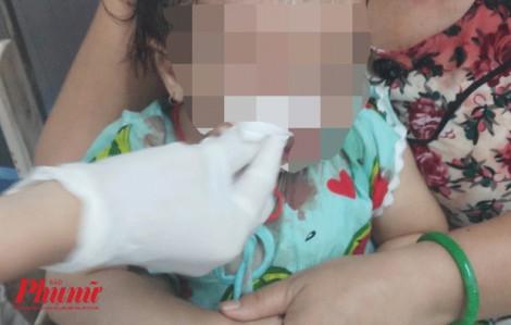 Người hàng xóm vô cớ ném chén thức ăn, bé gái 1 tuổi chấn thương mặt