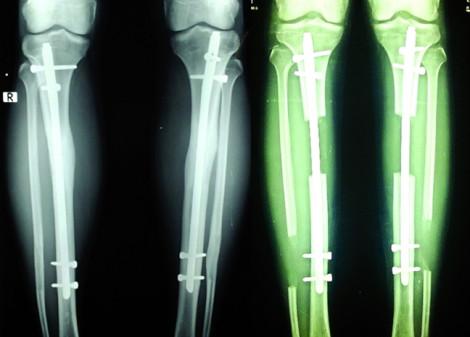 Kéo dài xương chân có phải muốn là được?
