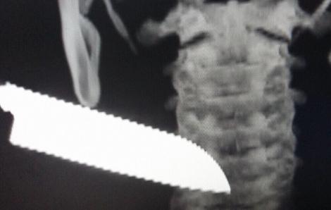 Xô xát với người quen, nam thanh niên 20 tuổi bị lưỡi dao 13cm đâm lút cán vào cổ